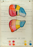 Segmentation of Liver by Daniel Baugh Institute