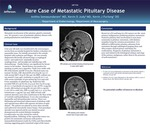 Rare Case of Metastatic Pituitary Disease
