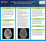 Carbidopa-Levadopa Improves Speech Apraxia After Open Traumatic Brain Injury